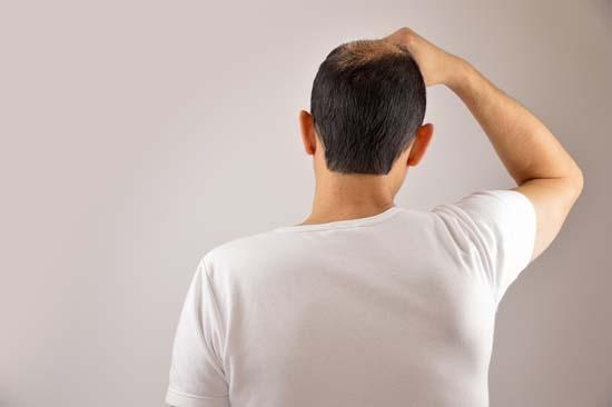 Quels types de compléments capillaires face à la perte de cheveux ?